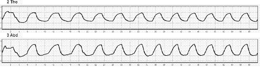 Before After Respiratory Waves